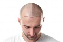 Disimula tu falta de cabello con las nuevas fibras capilares