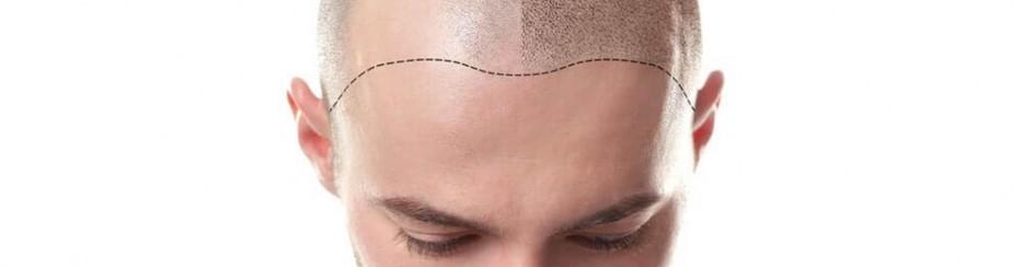 Nuevas fibras capilares para la calvicie